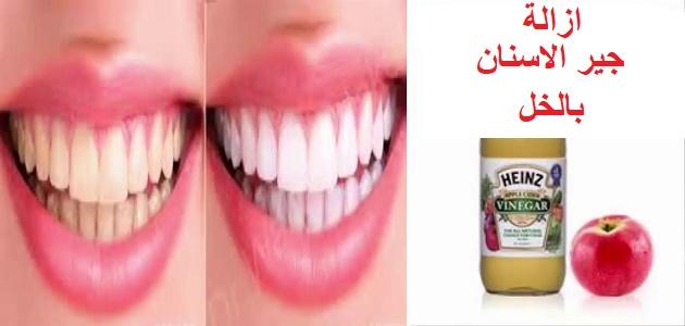 ازالة جير الاسنان بالخل