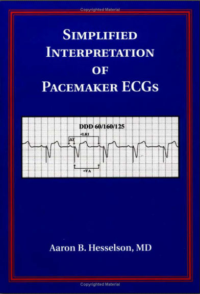 Simplified Interpretation of Pacemaker ECGs - An Introduction (2003) [PDF]