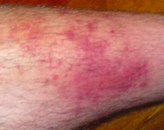 Cellulitis-Topic Overview – WebMD
