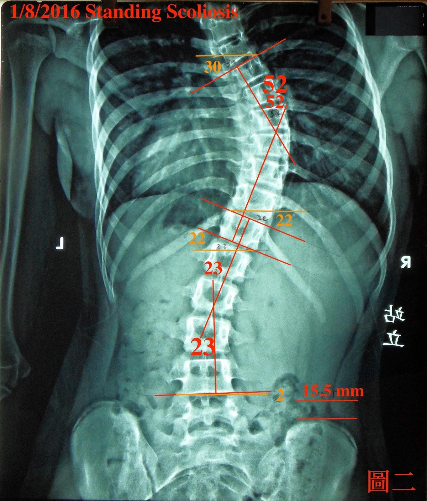 脊椎側彎矯正案例15 - 治療16次/ 52度-42.5度 - 閻曉華脊骨神經醫學網