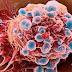 Tìm hiểu chung về ung thư dương vật