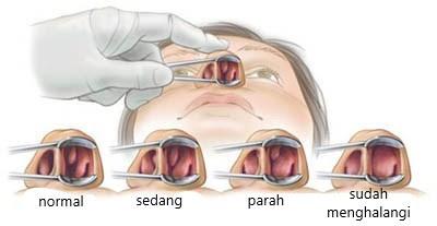 Gejala Polip Hidung Dan Obatnya