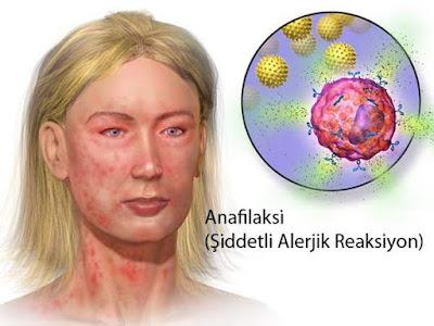 cara-mengobati-anafilaksis