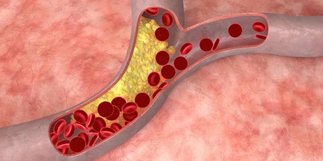 Adakah Cara Hilangkan Plak di Pembuluh Darah?