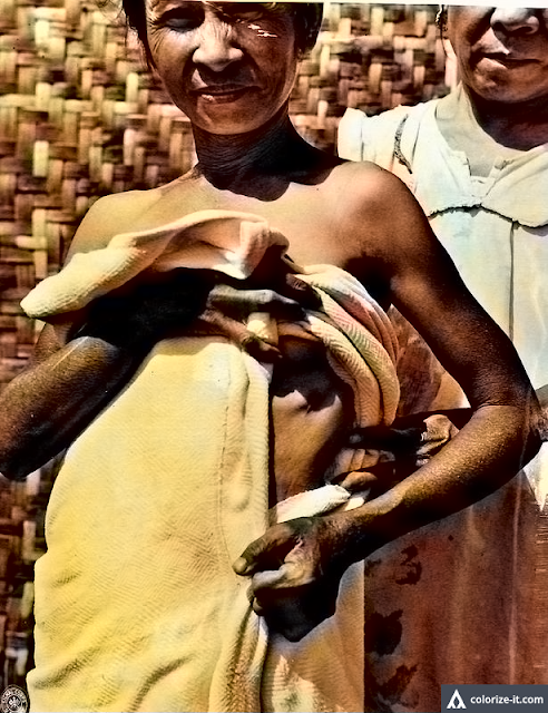 A woman from Taysan, San Jose shows bayonet wound.  Image source:  United States National Archives.