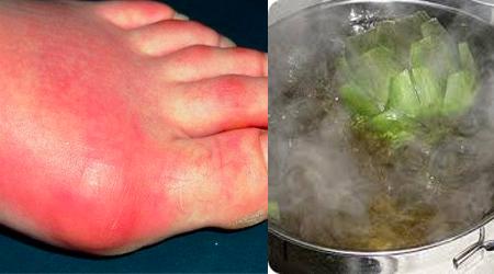 que alimentos no se deben consumir con acido urico alto evitar el acido urico la rodilla con acido urico elevado
