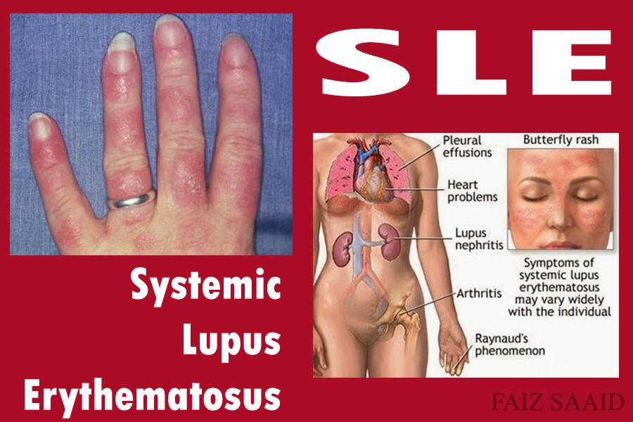 rawatan pesakit SLE