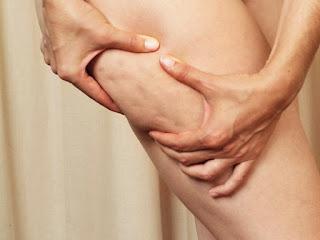 Causas da Celulite