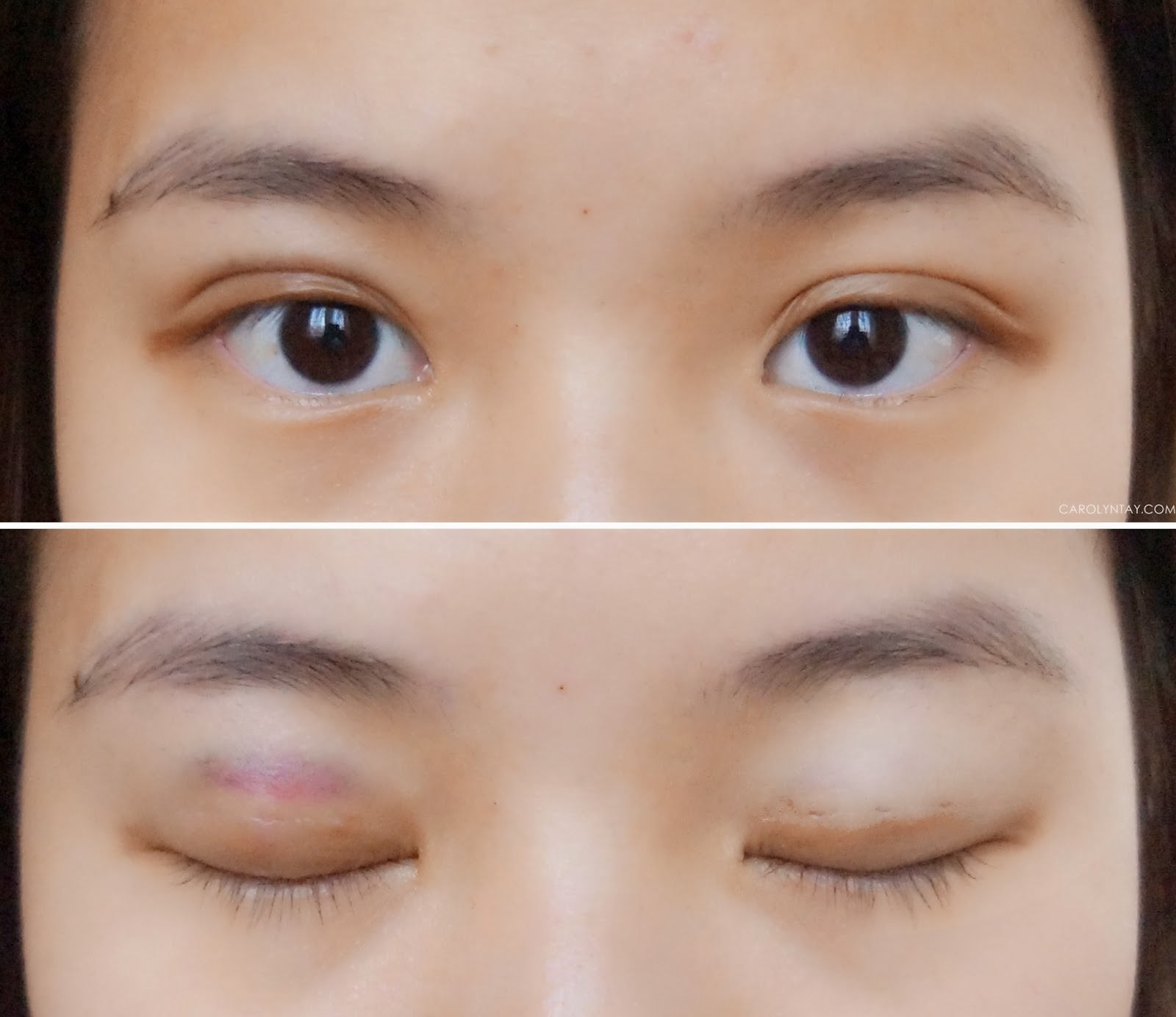DST double eyelid procedure at ME Aesthetic Clinic, Berjaya