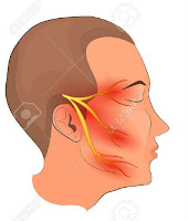 Trigeminal Neuralgia disorder,facial nerve disorder,how treat Trigeminal Neuralgia