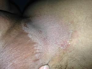 kulit paha dan bokong gatal bintik merah