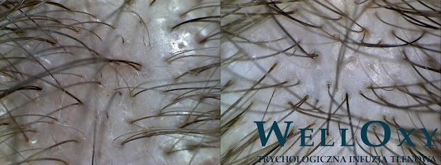 infuzja tlenowa zabieg na łysienie warszawa