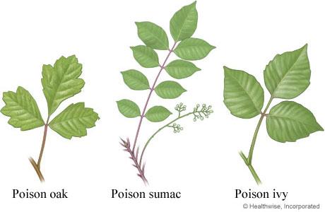 Poison Ivy, Poison Sumac, Poison Oak