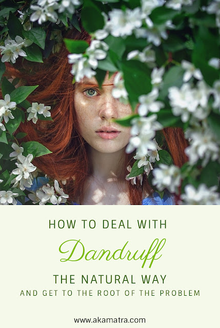 How to deal with dandruff the natural way and get to the root of the problem