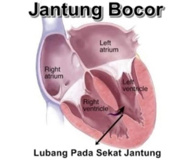 Penyakit Jantung Bocor, Solusi Pengobatan dan Biayanya