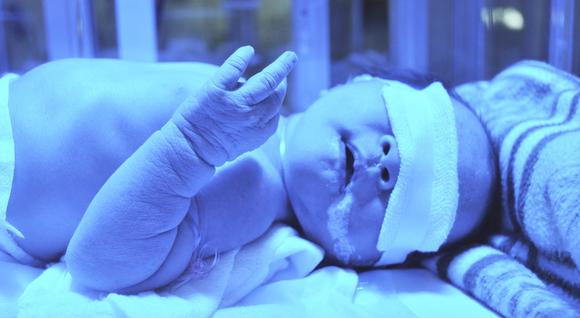 6 Cara Mengatasi Bayi Demam Kuning. Buat Rawatan, Hilangkan Cepat!