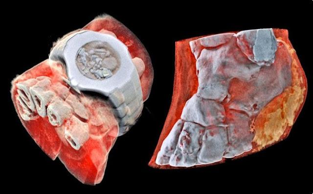 Futuro, huesos, escáner,