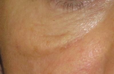 La imagen muestra un festón malar en el borde inferior de la ojera.
