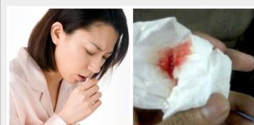 Cara Mengobati Batuk Darah Tanpa Operasi