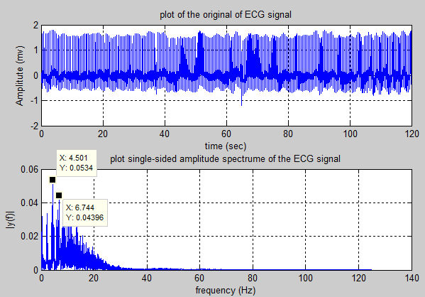 Biomedical Signal and Image Processing projects using Matlab and