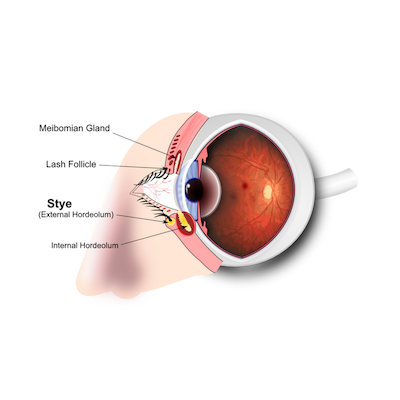 Styes and chalazion treatment and remedies | Best Homeopathy