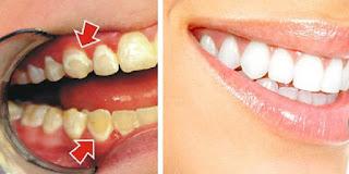 نصائح للمحافظة على صحة الاسنان