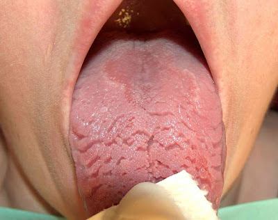 Geographic Tongue Natural Homeopathy Remedy