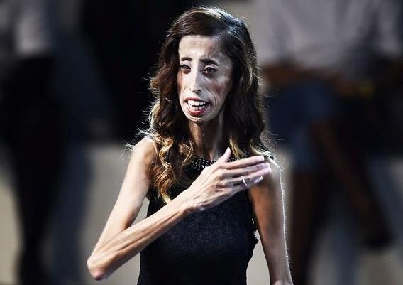 ugliest woman in the world Lizzie Velasquez.