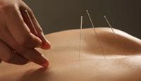 Apa itu Akupunktur? 6 Manfaat Akupunktur Untuk Kesehatan