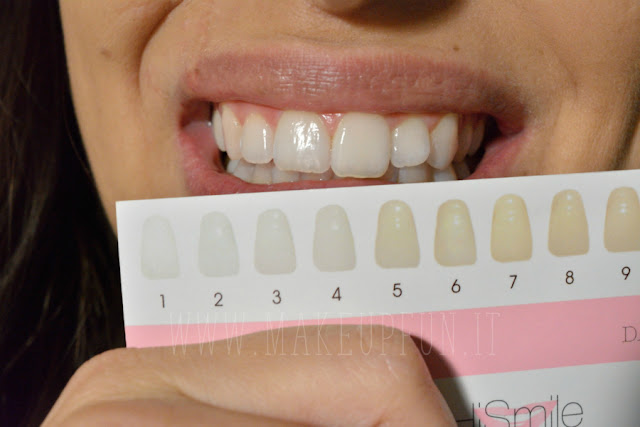 Whiten Your Teeth In 10 Minutes With HiSmile