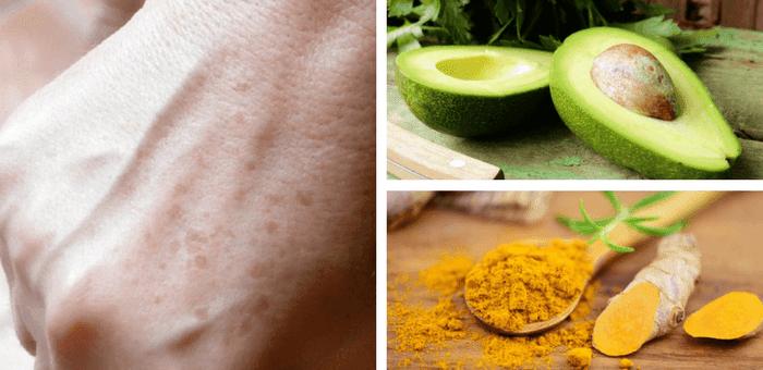 remedios para quitar las manchas de la piel
