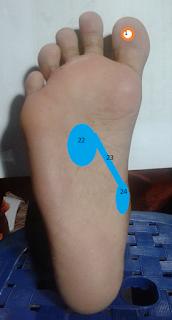Titik refleksi untuk mengatasi tekanan darah rendah