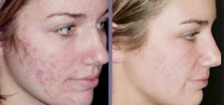Acne Vulgaris Definition And Causes