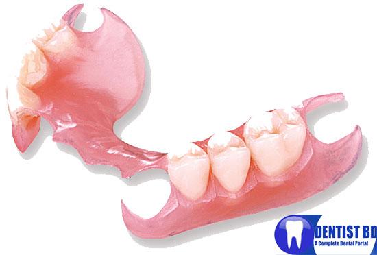 http://i2.wp.com/2.bp.blogspot.com/-IKCqicIQ1qU/TxFZtAAnCRI/AAAAAAAABUY/bn5k--9p21k/s1600/removable-partial-denture.jpg