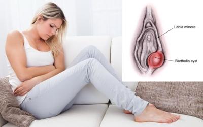Cara menghilangkan benjolan di vagina