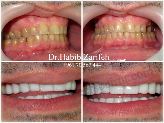 "Dr.Habib Zarifeh provides to you the perfect ""Hollywood Smile"" in Beirut Lebanon"