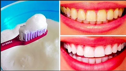 Here are simple ways you can naturally whiten your teeth