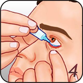 Cara Menggunakan Obat Salep Mata Yang Perlu Dijelaskan Kepada Pasien