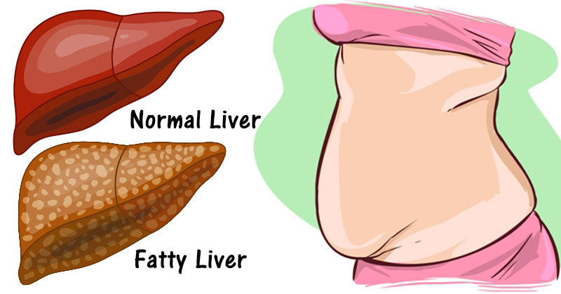 warning-sign-of-liver-making-you-fat