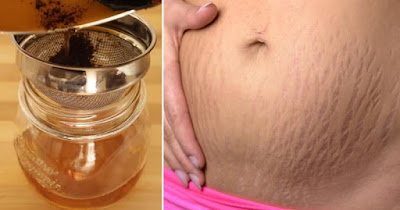 Remove Stretch Marks Fast With These 6 Natural Remedies