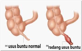 Diets Untuk Penderita radang usus buntu http://www.udan.name