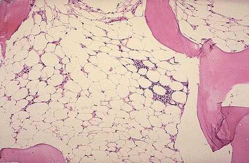 Tindakan Keperawatan Anemia Aplastik dan Hipoplastik