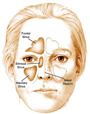 Sinuses are cavities of skeletal compositions which are accommodated in the area above the eyes, around the nose and over the cheeks.