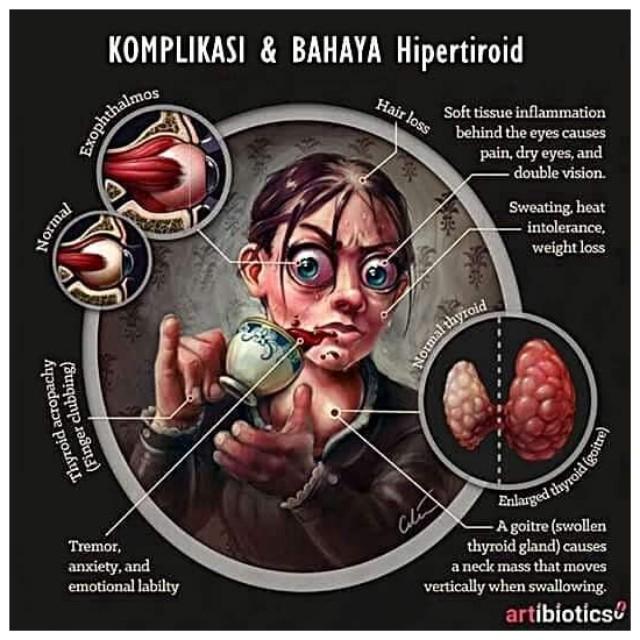 Jom alert simptom hipertiroid. Mungkin korang ada salah satunya!