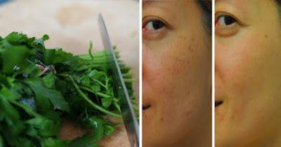 Enlever les taches brunes sur la peau avec cette recette de persil