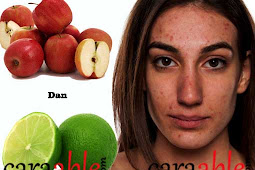 Cara Menghilangkan Jerawat dan Bekas Jerawat  Menggunakan Cuka Apel dan Jeruk Nipis yang Benar secara Alami