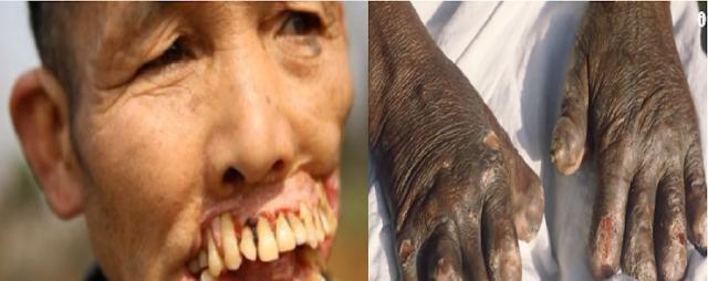 أكثر 5 أمراض إثارةً للرعب في العالم! ليس لأصحاب القلوب الضعيفة