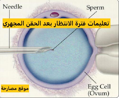 تعليمات فترة الانتظار بعد الحقن المجهري