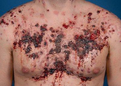 corticosteroid acne treatment