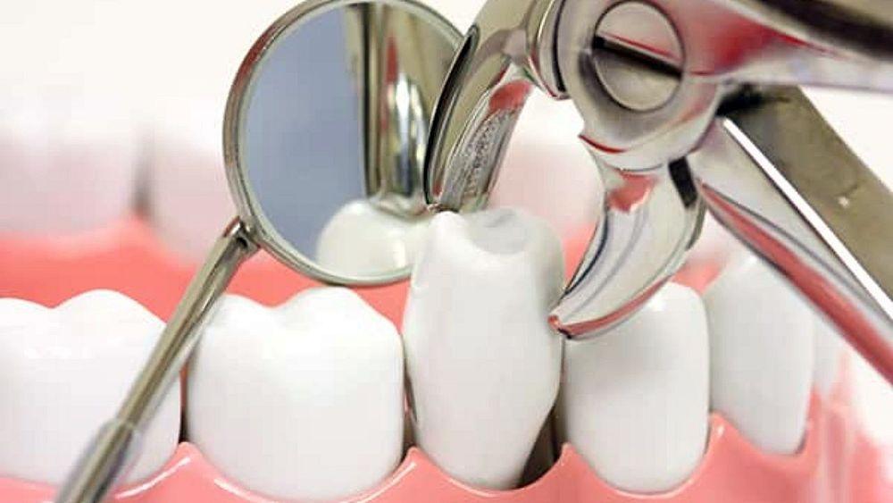 Extraccion dental
